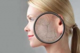 Лущитися шкіра: що робити і як вирішити цю проблему (рецепти ефективних масок для обличчя)