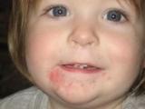 У ребенка крапивница на подбородке: причины, диагностика, лечение