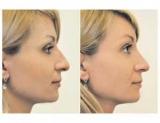 Виправ форму носа або все, що необхідно знати про ринопластику